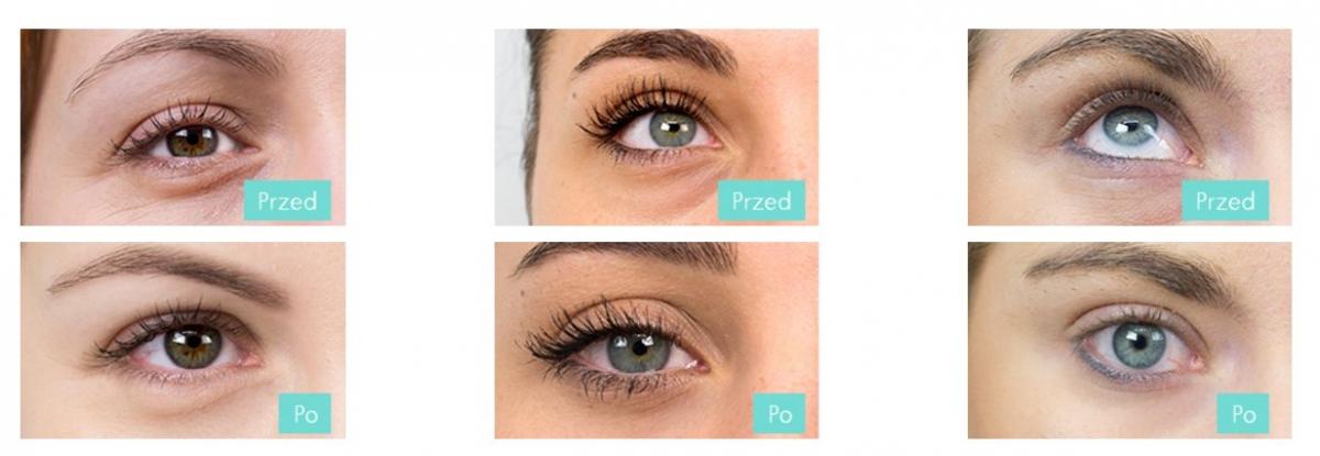Serum Pod Oczy Pure Od Realash Advanced Eye Renewal Serum